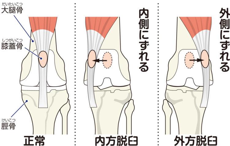 膝蓋骨脱臼の図 パテラ