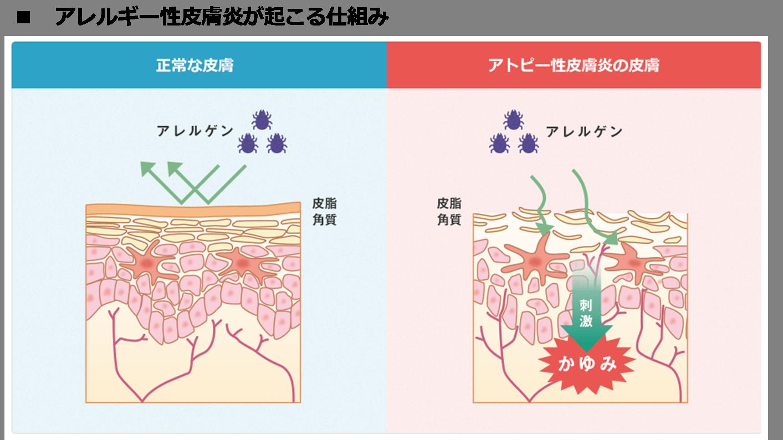 アレルギー性皮膚炎が起こる仕組み